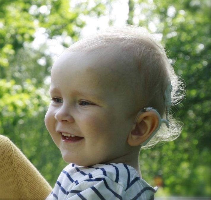 Kesäinen kasvokuva Harrista 1,5-vuotiaana, toisen korvan valkoinen puheprosessori näkyy.