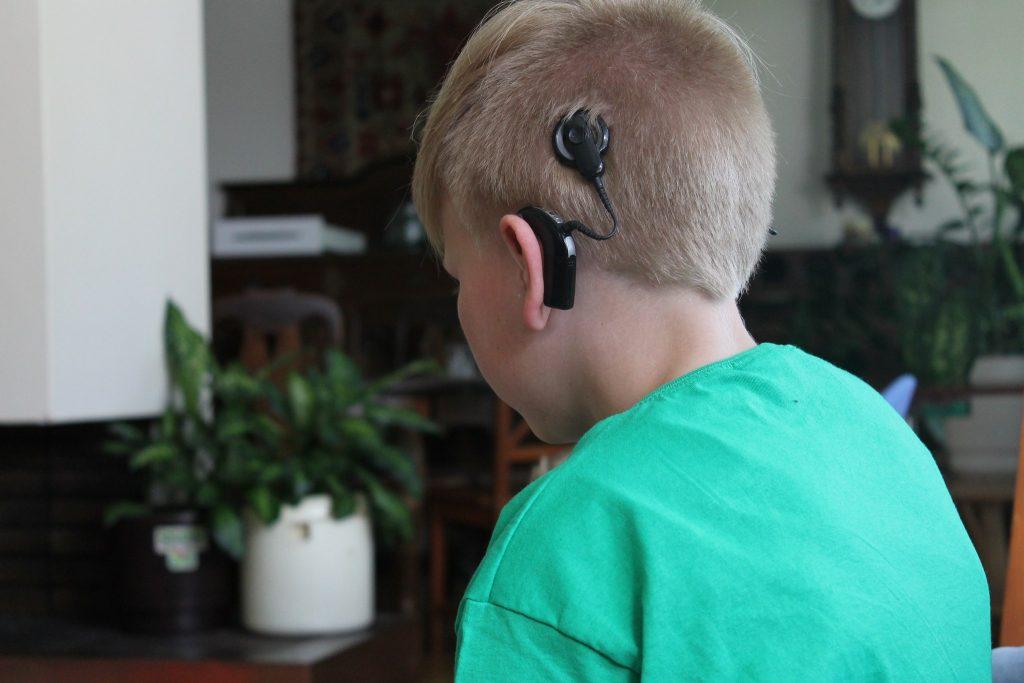 Kuvassa viistosti takaapäin kuvattuna poika, jolla on sisäkorvaistute  / mitä kuulo on?